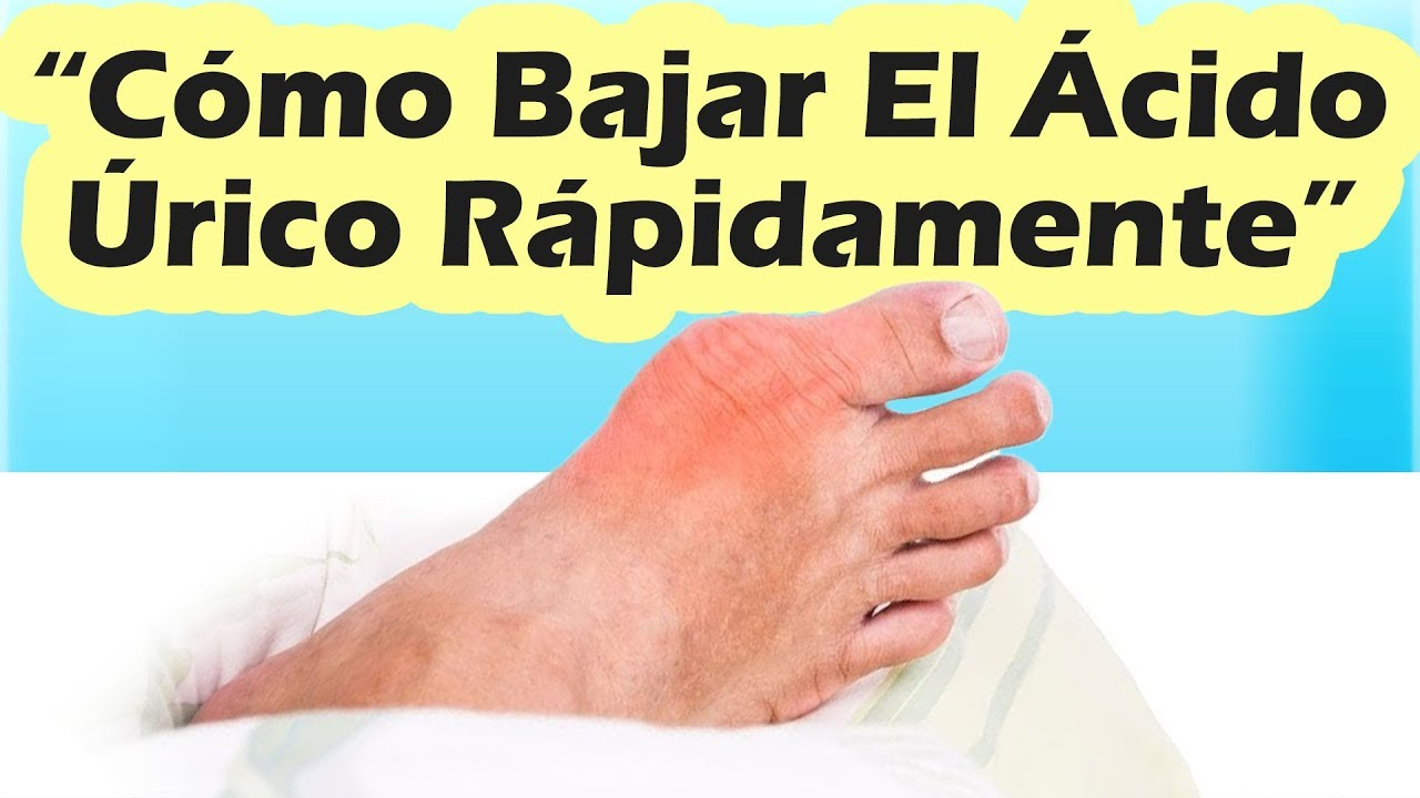 como quitar el dolor de pie por acido urico
