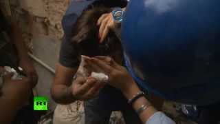 Сотрудник RT ранен в голову во время перестрелки в Сирии