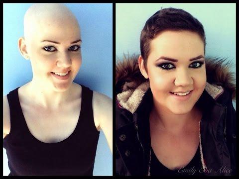 Argan Rain   Alopecia Solution Testimonials