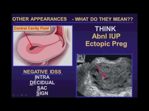 Ultrasound Evaluation of Ectopic Pregnancy