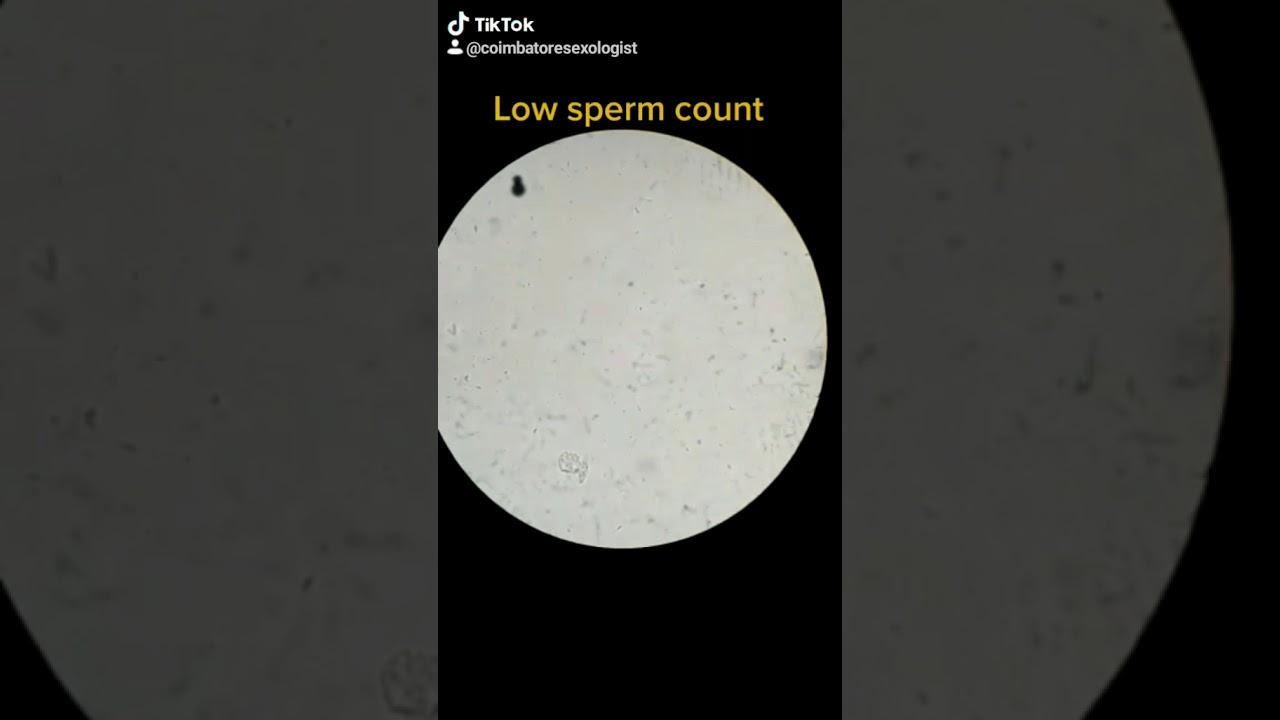 Gay penetration pics