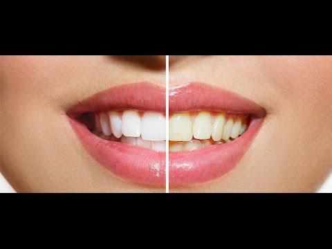Enxaguante Bucal Clareia Os Dentes Naturalmente Caseiro Sem