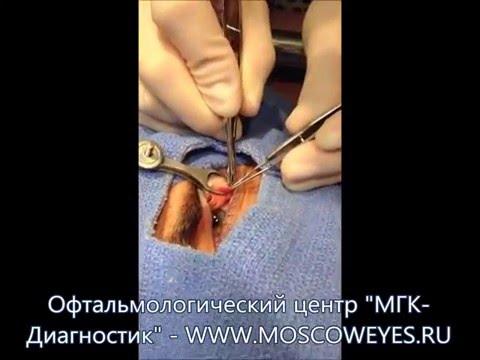 Стоимость операции по удалению катаракты.