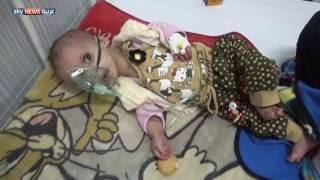 3 ملايين يعانون سوء التغذية في اليمن