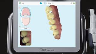 SMOOTH INTEGRATION: iTero Element and exocad ChairsideCAD