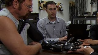 Watch: Bionic arm can be controlled by brain