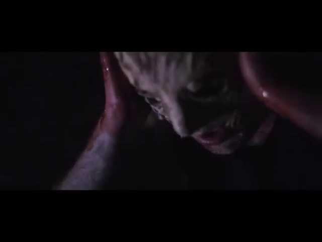 Skippy Ickum - Sickness Feat DKM (Official Music Video)