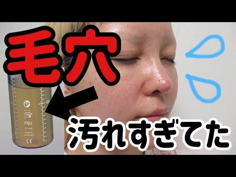 フェイシャル 大阪 ハイドラ