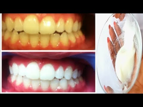 How I Whiten My Brown Teeth At Home In 5 Minutes 100 Working Youtube