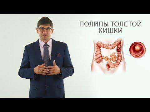 полипы толстой кишки (полип анального канала, полип прямой кишки)
