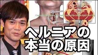 世界10万人が効果を認めた治療手技を無料プレゼント↓ http://xn--mdki1ec4579albbc20bevewt1c79o2yf78f.com/totsu-muryo5/ もっと治療テクニックが欲しい人はこ...