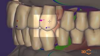 Exocad Denture module | Модуль съемных протезов