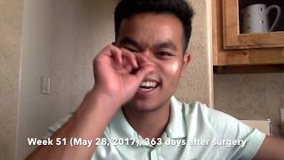 Download Double Jaw Surgery - My Experience and Tips MP3 song and Music Video