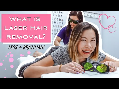 My Laser Hair Removal Experience | Legs & Brazilian