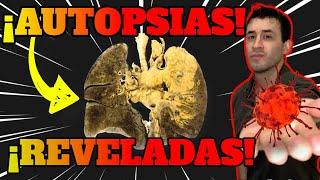COVID 19|MÁS de 40 AUTOPSIAS REVELADAS | ANÁLISIS POST MORTEM de CAUSAS DE MUERTE
