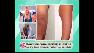 Παρουσίαση του Carbo Care στο πρωινό Ant1 Thumbnail