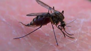 видео Как облегчить зуд от комариных укусов? Чем обработать комариный укус?