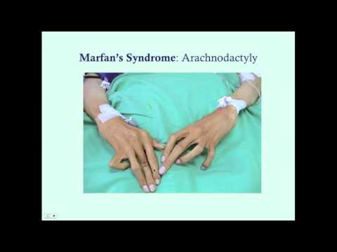 Marfan's Syndrome - CRASH! Medical Review Series