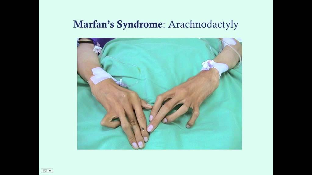 marfan syndrome disorder Marfan's syndrome is an inherited connective tissue disorder that affects normal body growth connective tissue provides support for your skeletal structure and all organs of your body any .