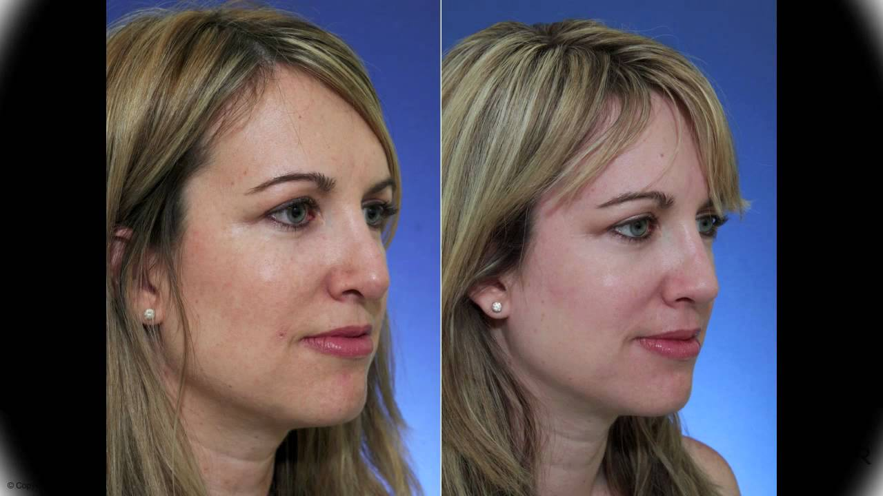 Revision Rhinoplasty For Pollybeak Deformity And Hanging