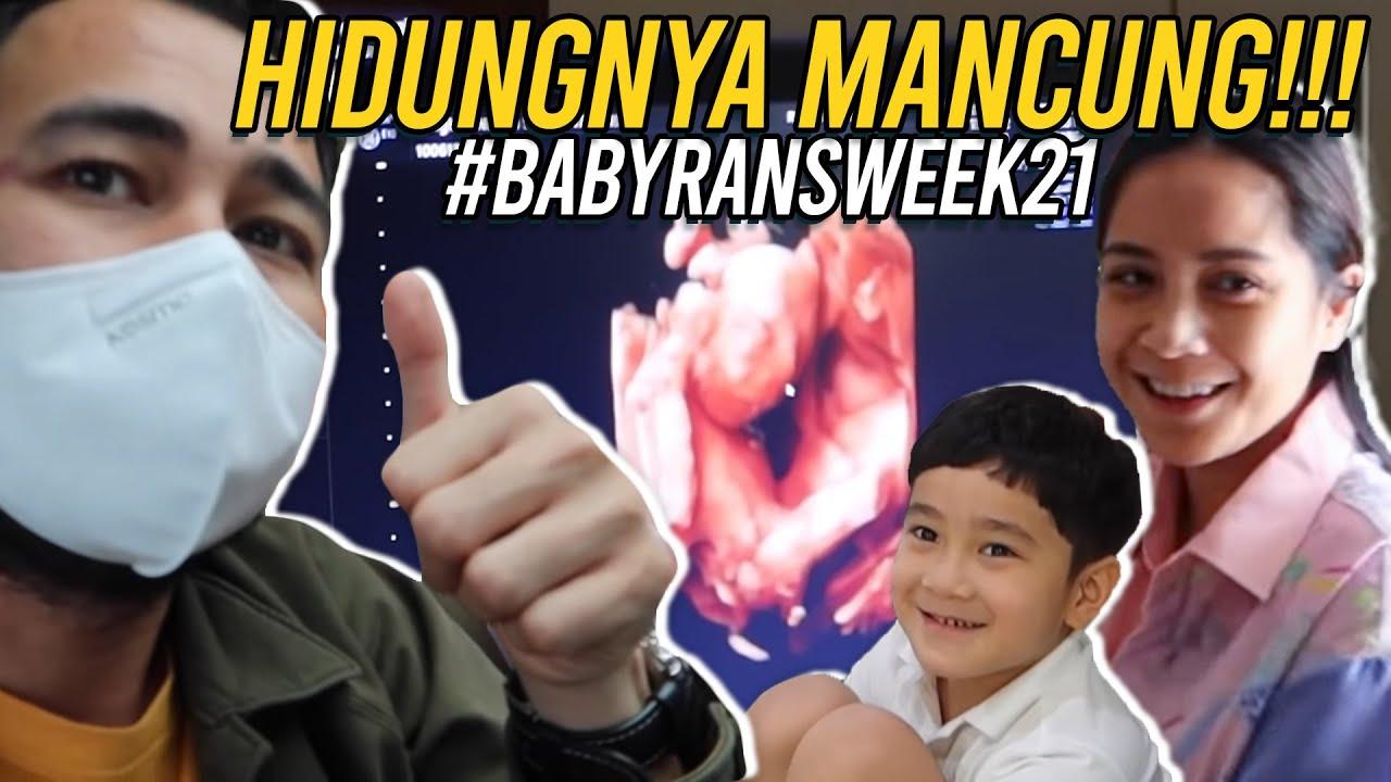 NAGITA NANGIS BAHAGIA LIAT SI BABY  SEHAT DAN HIDUNGNYA MANCUNG!!!