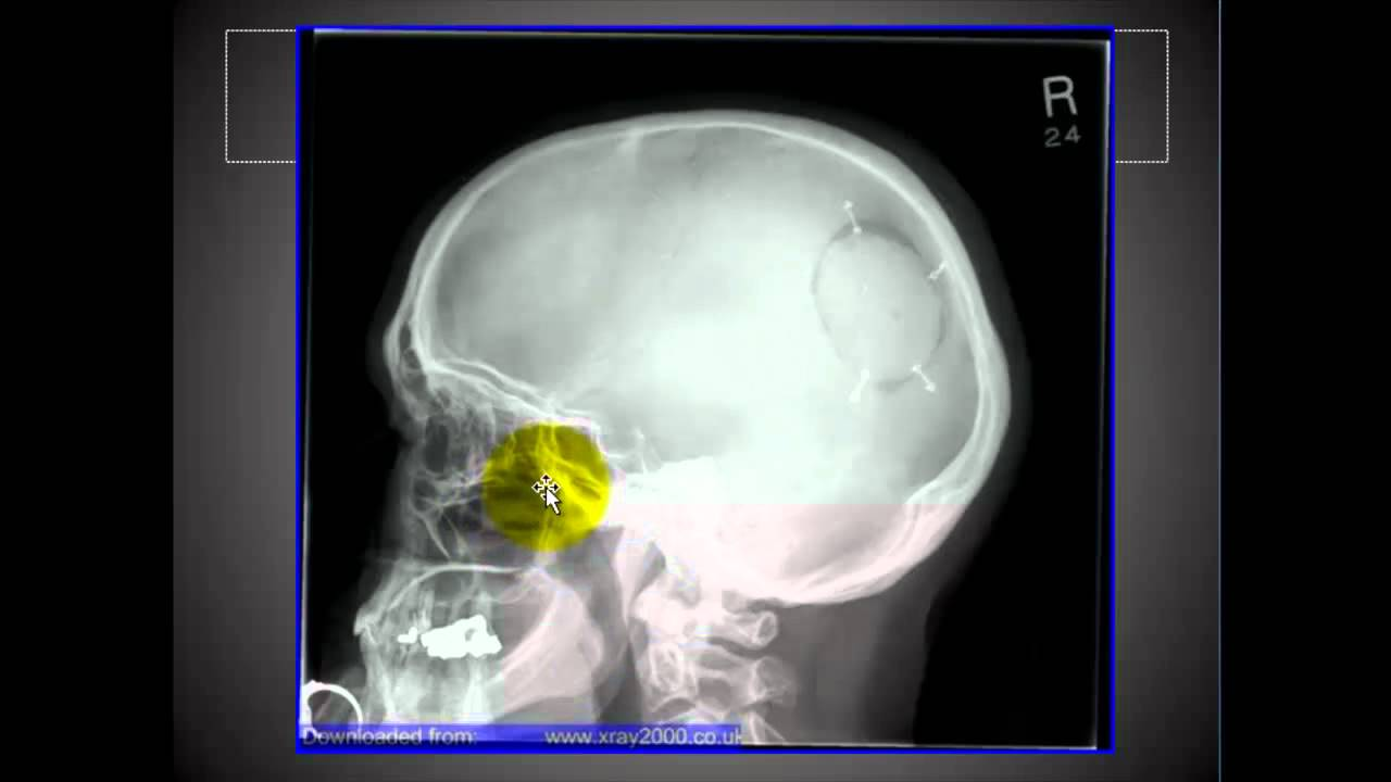 Lateral Skull And Sinuses4 Youtube