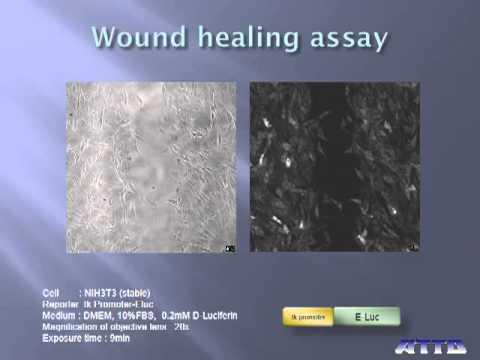 Wound+healing+assay
