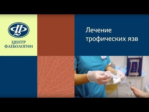 Лимфедема рук после мастэктомии / Лимфатические отеки