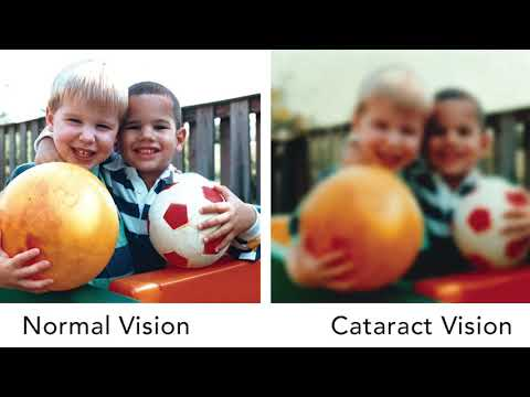 Knight Vision Tip of the Week - Cataracts