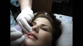 Tatuaj contur buze Zarescu D 0745001236 SND www machiajtatuaj ro