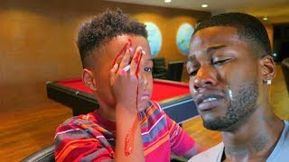 PENCIL STUCK IN MY EYE PRANK