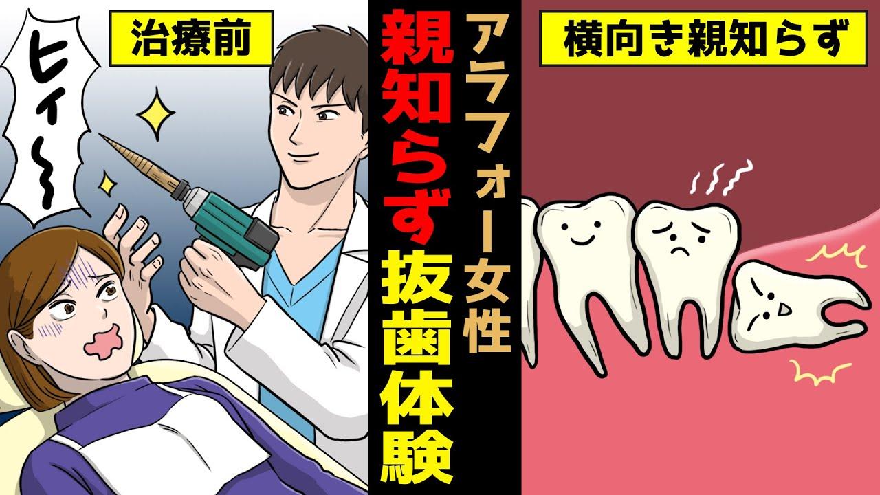 【漫画】アラフォー女性が親知らずを抜くとどうなるのか?横向きに生えてきた難抜歯体験記(マンガ動画)(歯医者さん)