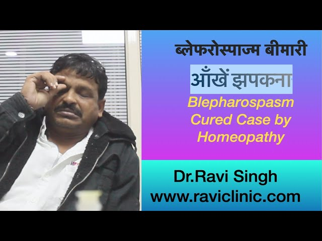 Blepharospasm आँखें झपकना Cured Case by Homeopathy