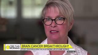 David Agus - Brain Cancer Breakthrough