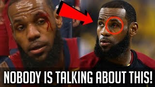 The LeBron James Injury NOBODY Is Talking About!