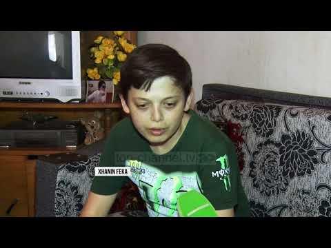 Talasemia e pengoi të rritet, historia e 28-vjeçarit që duket si 13 vjeç - Top Channel Albania