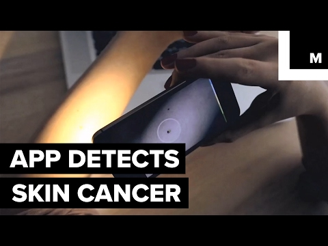 This app can spot skin cancer by taking a photo