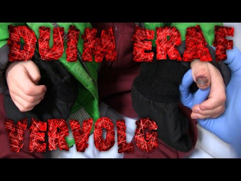 Vlog 148: Duim eraf    *update*