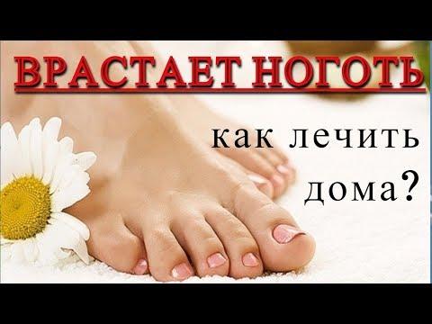 ВРАСТАЕТ НОГОТЬ-что делать?  КАК ЛЕЧИТЬ ДОМА?#DomSovetov