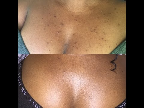 Remove Dark spots easily with Microdermabrasion