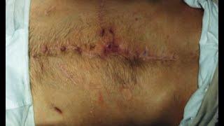 видео Осложнения после удаления аппендицита