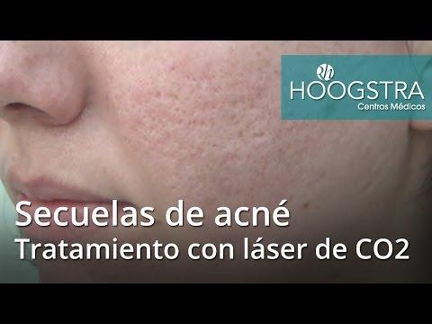 Secuelas de acné - Tratamiento con láser de CO2 (16119)