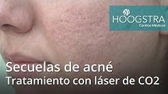 hqdefault - Tratamiento De Secuelas Del Acne