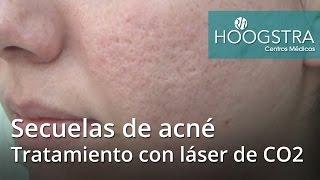Con arrugas para tratamiento laser