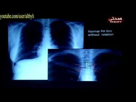conventional radiography chest x ray كورس اشعة صدر من البداية