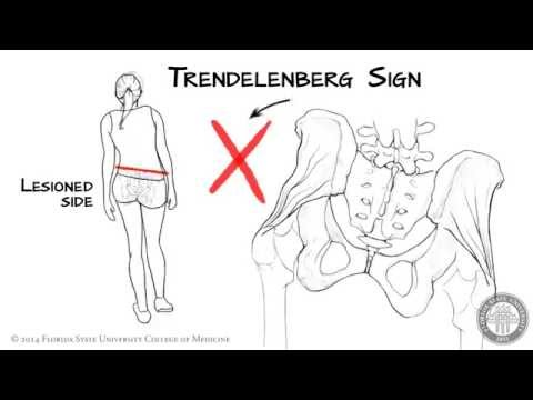 The Trendelenberg Sign [HD]