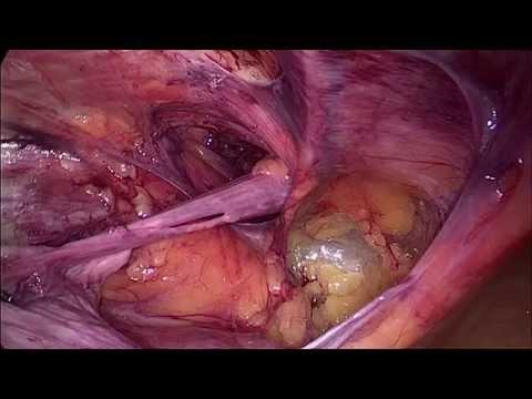 Babe hernia repair orgasm