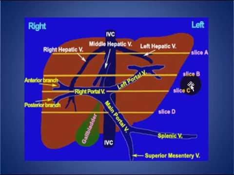 Radiology Rounds 07 Liver Segmental Anatomy Youtube
