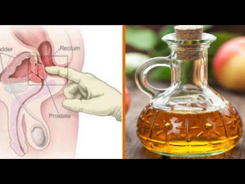 Forget Prostate Problems With These Natural Treatments