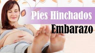 La hinchazón el de Cómo evitar embarazo las piernas durante
